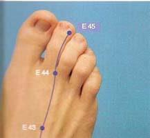 acupuntura para la gingivitis