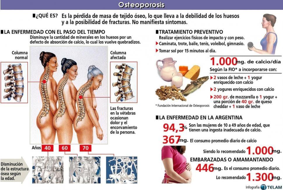 Origen-osteoporosis